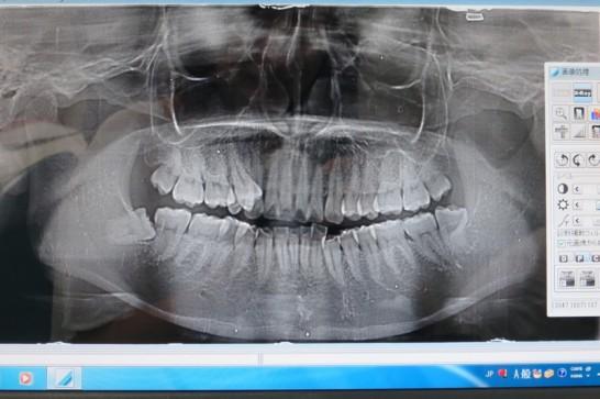 25年ぶりの歯医者へ!